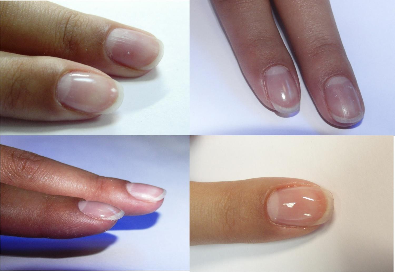 Ногти гелем покрыть